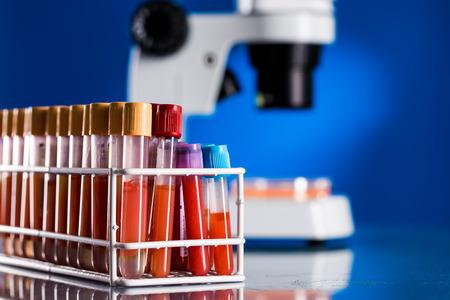 coronavirus: Test tubes with blood samples for testing for the coronavirus