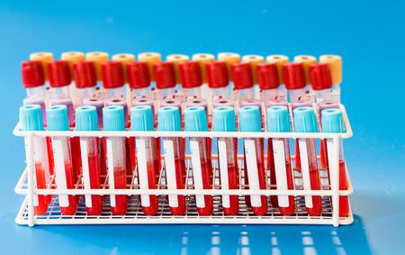 Blood sample in test tube Stok Fotoğraf