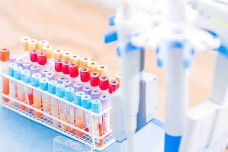 Vacutainer tubes, vacuum tubes for collecting blood samples in the lab