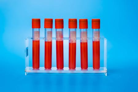 globulos blancos: Los tubos de vac�o para la toma de muestras de sangre Foto de archivo