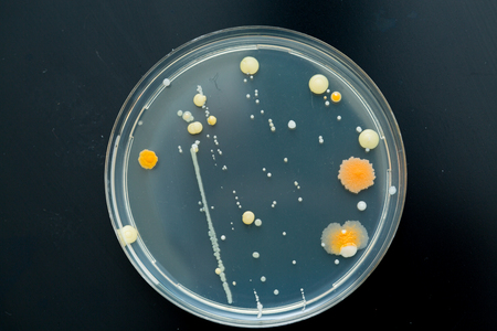 colonies: Petri dish with bacteria colonies Stock Photo