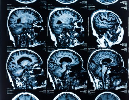 medical scanner: MRI Head Scan