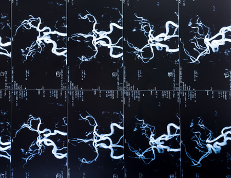brain cancer: MRI Head Scan, blood vessels in the brain Stock Photo