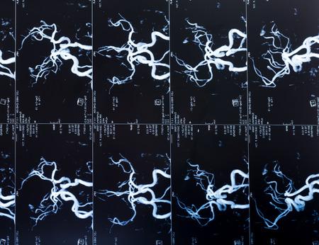 vaisseaux sanguins: MRI Head Scan, blood vessels in the brain Banque d'images