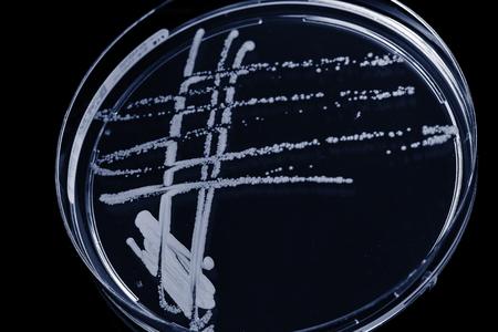 mycology: blank petri dish isolated on black. Toned photo