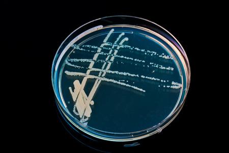 mycology: blank petri dish isolated on black