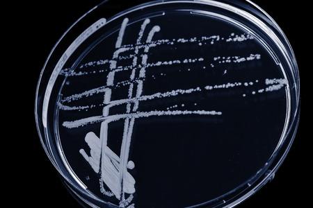 petri dish: blank petri dish isolated on black. Toned photo