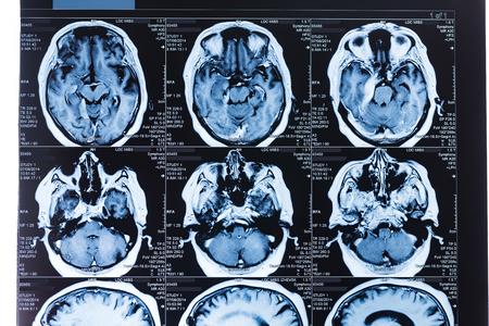 x rays negative: MRI Head Scan