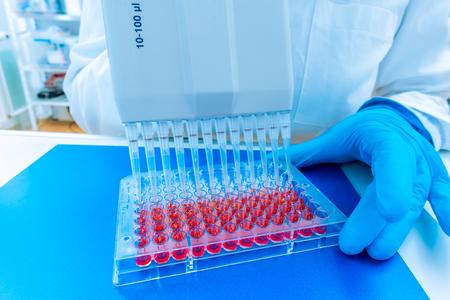 asistente mujer en laboratorio con múltiples pipeta en la clínica, la investigación de las células madre del cáncer