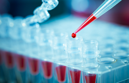micropipette: pcr analysis dna profiling