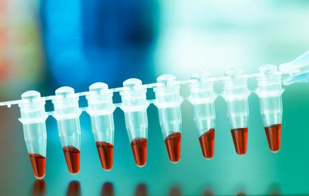 metodo cientifico: PCR análisis de ADN de perfiles