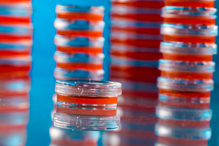 anemia: Stack of petri dishes on blue background