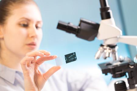 Vrouw in een laboratorium microscoop met microscoopglaasje in de hand. Onderzoek biopsie monster Stockfoto