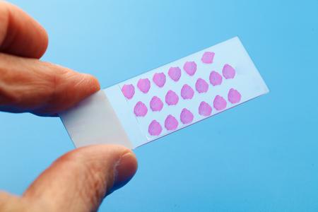 biopsia: portaobjetos de microscopio con muestras de biopsia Foto de archivo