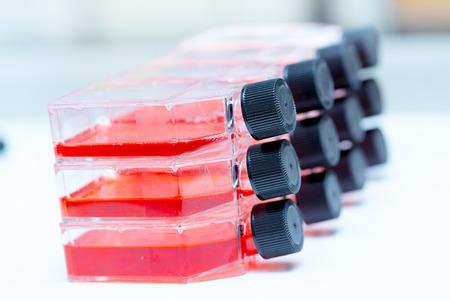 微生物研究室で培養フラスコ