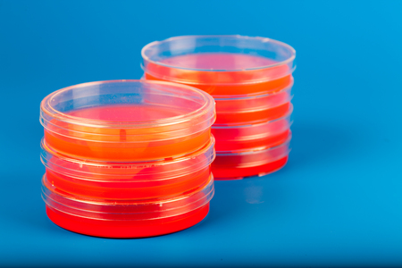 petri: Petri dishes with red fluid on blue background Stock Photo