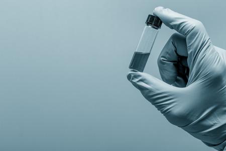 phlebotomy: test tube vial in hand
