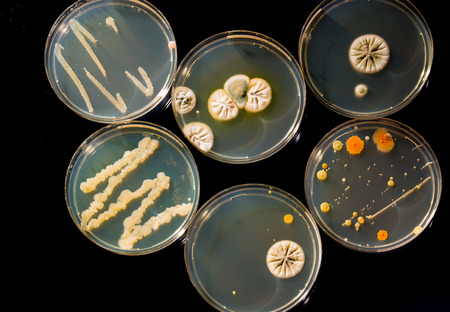petri dish: petri dish