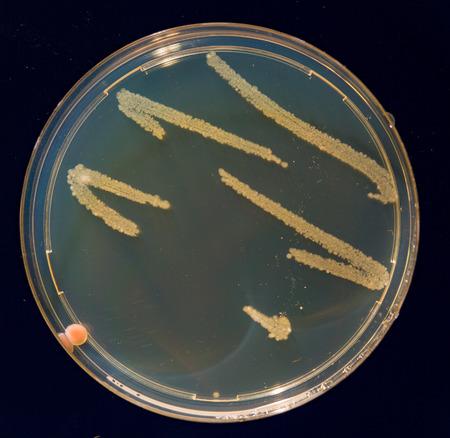 petri: petri dish