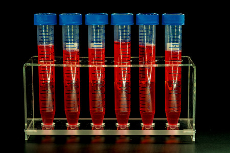 endocrinology: Six test tubes in rack