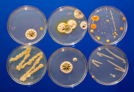 petri dish samples with bacteria and fungal colonies