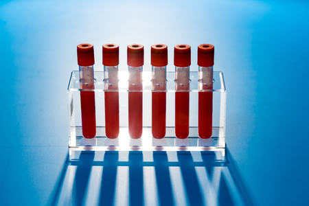 Test tubes with blood for medical and biological analyzes