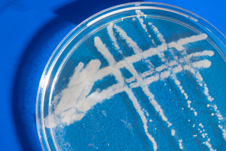 Pile petri dish with growing cultures of microorganisms in doctor hand , fungi and microbes. A Petri dish  ( Petrie dish. Petri plate or cell-culture dish)