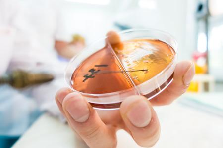 sowing biological culture on agar in a Petri dish Standard-Bild