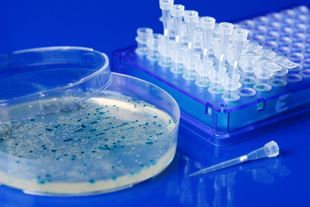 Scientist hand  picks up bacterial colonies for cloning of transgenic vector into plasmid DNA Banque d'images