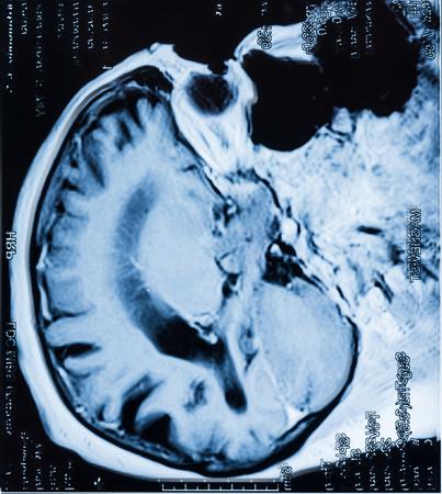 Cabeça MRT. Imagem de ressonância magnética do cérebro humano Foto de archivo