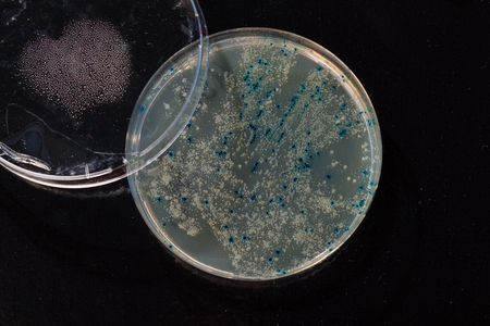colonies  in petri dish for cloning of transgenic vector into plasmid DNA