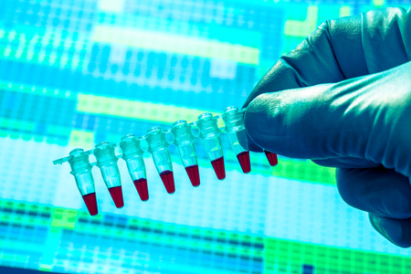 Bio samples for genetic analysis Blood In tube for laboratory analysis