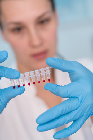 Young woman with genetic research in the laboratory research of cancer diseases Stock Photo