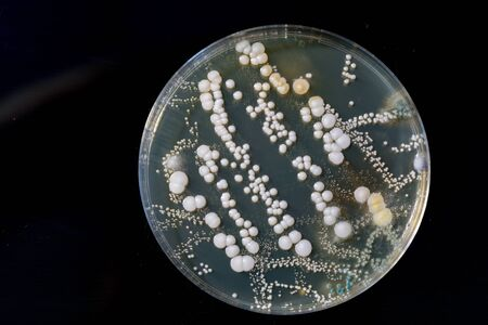petri dish with bacteria, isolated on black Фото со стока