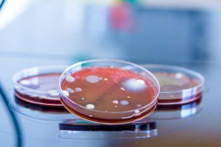 Placas de Petri con colonias de microorganismos en un laboratorio biológico.