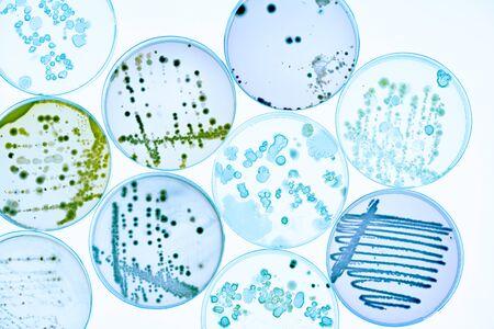 Mélange de colonies de bactéries et de champignons dans diverses boîtes de Pétri