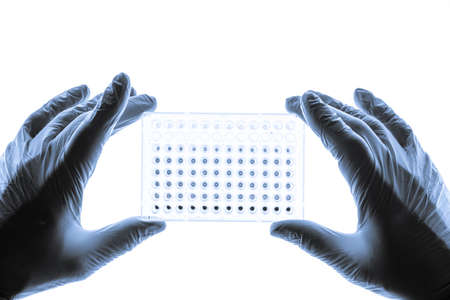 Dna Samples Are Loaded To 96-Well Plate For Pcr Analysis 写真素材 - 154994361