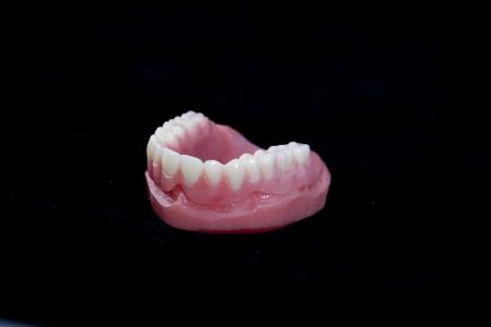 image of upper complete denture