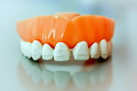 Frontal view of dental prosthesis