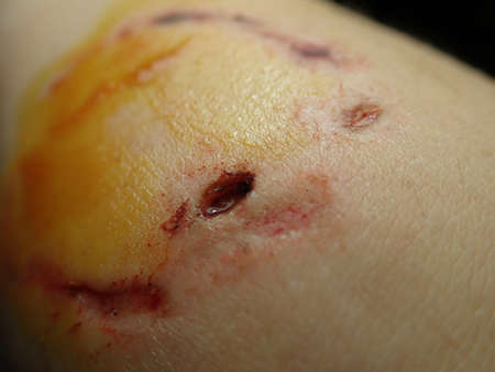 detail of a dog bite wound on a hand with iodine desinfection