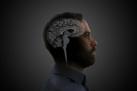 Brain Magnetic Resonance Image over a mans head profile.
