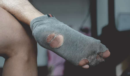 picture of leg wearing old, dirty, and torn socks.