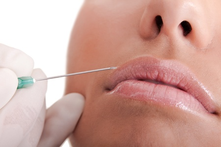 close up - young woman putting a collagen in lips