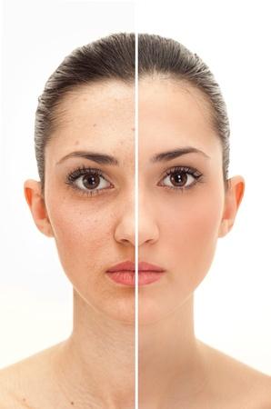 cute: volto di donna, il concetto di bellezza, prima e dopo il contrasto, il potere di ritocco Archivio Fotografico