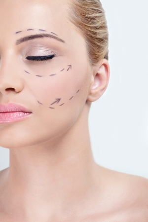 aesthetic:  close up of  woman face with correction lines,   before plastic surgery operation