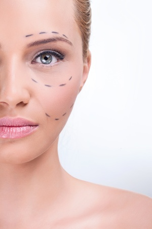 Lines on an attractive Caucasian lady face as marks for cosmetic plastic surgery photo