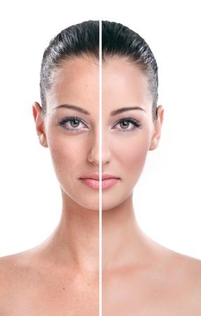 piel: Primer plano de una cara de la mujer dividido en dos partes - retocar y retocar belleza malo bueno.