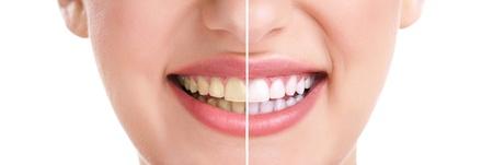 dientes sucios: dientes de la mujer y la sonrisa, primer plano, aislado, en, blanco, tratamiento de blanqueamiento Foto de archivo