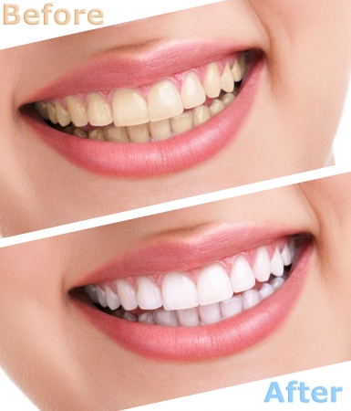 dental smile:  bleaching teeth treatment , close up, isolated on white, before and after
