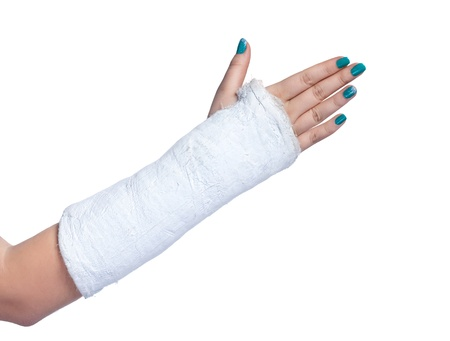 close up of a broken arm in a plaster cast on a white background Stock Photo - 19532661